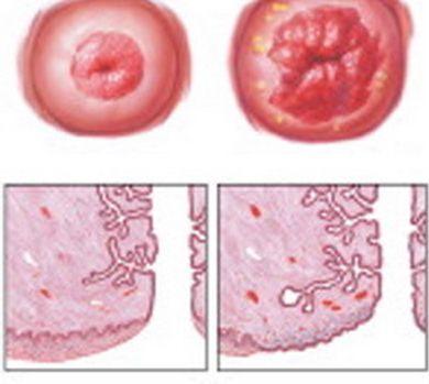 Народное лечение эрозии шейки матки в домашних условиях